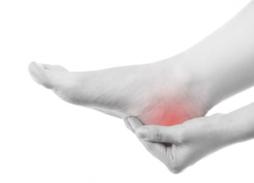 wellers physio heel pain