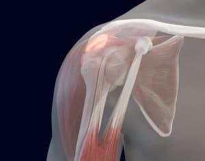 Shoulder Discomfort